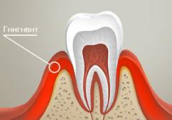 Лечение гингивита в Новосибирске в стоматологической клинике ТАРИ