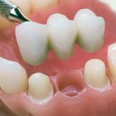 Протезирование зубов металлокерамикой в Новосибирске