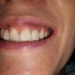 До (зуб 2.2 - перелом корня).